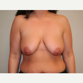 25-34 year old woman treated with Breast Lift before 3339141
