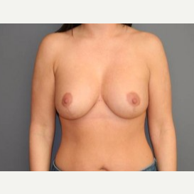 25-34 year old woman treated with Breast Lift after 3339141