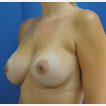 25-34 year old woman treated with Breast Augmentation after 3816351