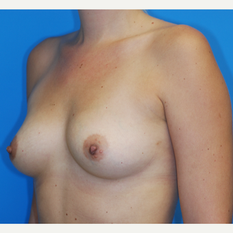 25-34 year old woman treated with Breast Augmentation before 3816351