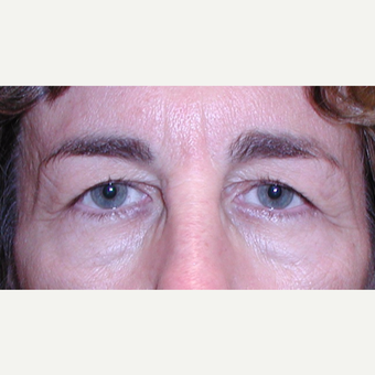 Blepharoplasty for hooded or heavy eyelids before 3042015