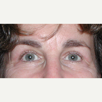Blepharoplasty for hooded or heavy eyelids after 3042015