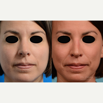 35-44 year old woman treated with Rhinoplasty before 3821361