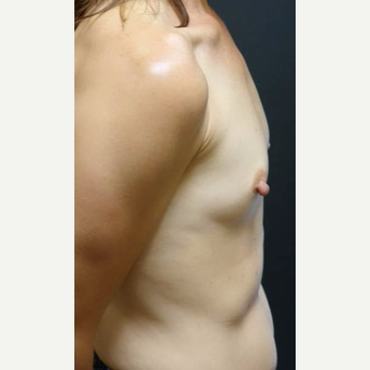35-44 year old woman treated with Breast Implants before 3460357