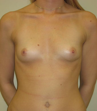 25-34 year old woman treated with Breast Augmentation before 3776216