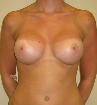 25-34 year old woman treated with Breast Augmentation after 3776216