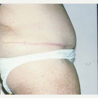 Woman treated with Tummy Tuck after 1710604