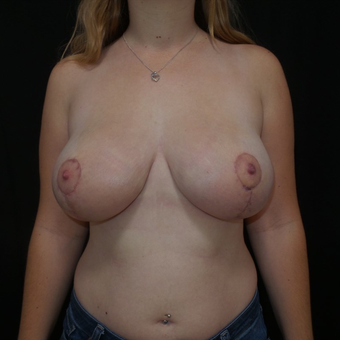35-44 year old woman treated with Breast Reduction after 3566191