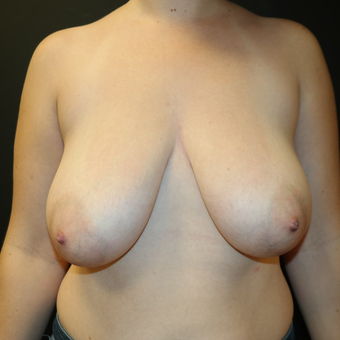 35-44 year old woman treated with Breast Reduction before 3566191
