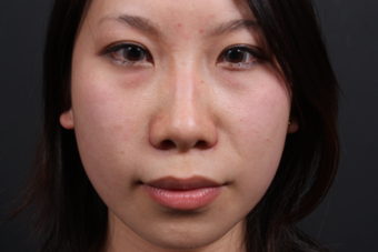 This young lady underwent alar base (nostril) reduction under local anesthesia after 748989