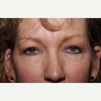 55-64 year old woman treated with Brow Lift before 3481322