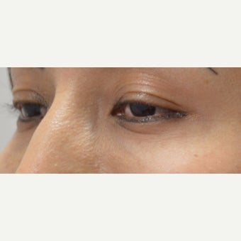 25-34 year old woman treated with Juvederm 1874282
