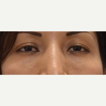 25-34 year old woman treated with Juvederm after 1874282