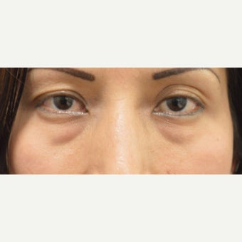 25-34 year old woman treated with Juvederm before 1874282