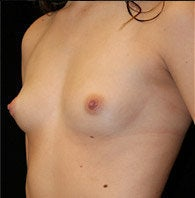 Breast Augmentation before 1301668