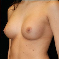 Breast Augmentation after 1301668