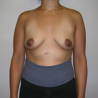 Breast Augmentation, Paramus, NJ before 3815177