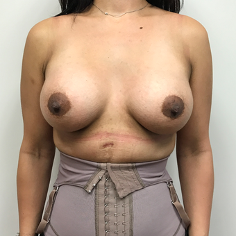 Breast Augmentation, Paramus, NJ after 3815177