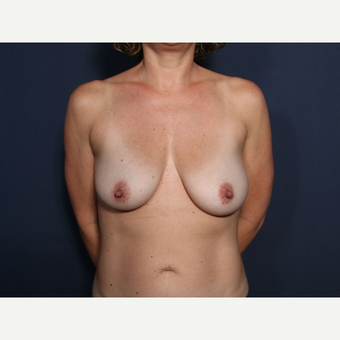 35-44 year old woman treated with Breast Lift with Implants (view 1 of 2) before 3099397