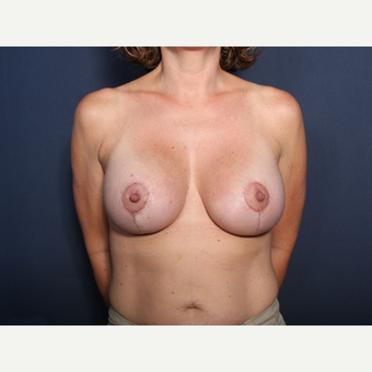 35-44 year old woman treated with Breast Lift with Implants (view 1 of 2) after 3099397