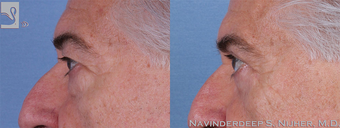 65-74 year old woman treated with Eyelid Surgery-56880 after 3768603
