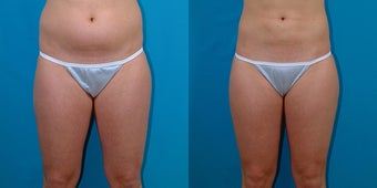 21-year-old woman treated with Liposuction. before 3287325