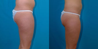 21-year-old woman treated with Liposuction. after 3287325