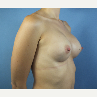 25-34 year old woman treated with Breast Augmentation after 3167307