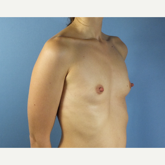 25-34 year old woman treated with Breast Augmentation before 3167307