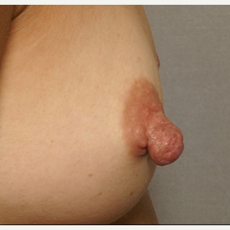 25-34 year old woman treated with Nipple Surgery before 3072258