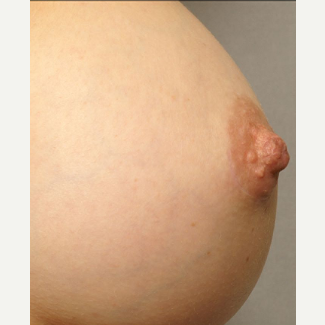 25-34 year old woman treated with Nipple Surgery after 3072258