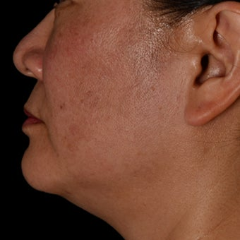 35-44 year old woman treated with Kybella before 2063780