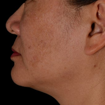 35-44 year old woman treated with Kybella after 2063780