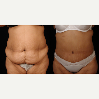 35-44 year old woman treated with Tummy Tuck before 3659621