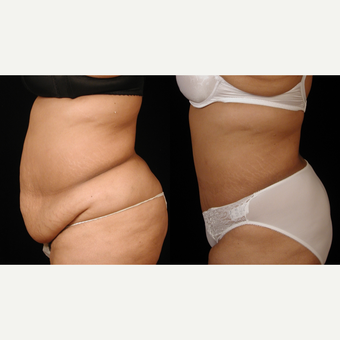35-44 year old woman treated with Tummy Tuck after 3659621