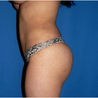 25-34 year old woman treated with Brazilian Butt Lift after 3002351