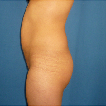 25-34 year old woman treated with Brazilian Butt Lift before 3002351