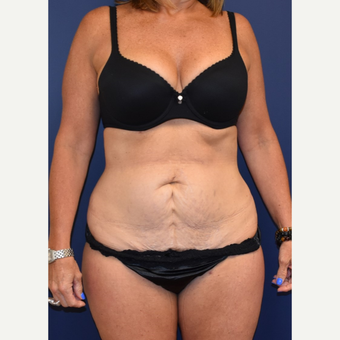 45-54 year old woman treated with Liposuction before 3744534