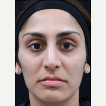 32 year old female treated with Botox after 3418019