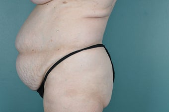 Tummy Tuck before 974960