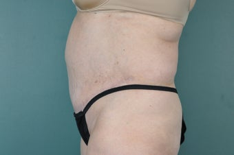 Tummy Tuck after 974960