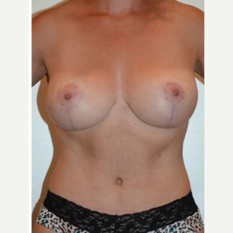 35-44 y.o. woman treated with full tummy tuck, muscle repair, extensive liposuction contouring