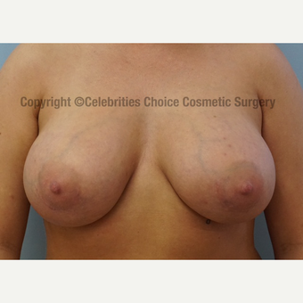 25-34 year old woman treated with Breast Augmentation after 3156509