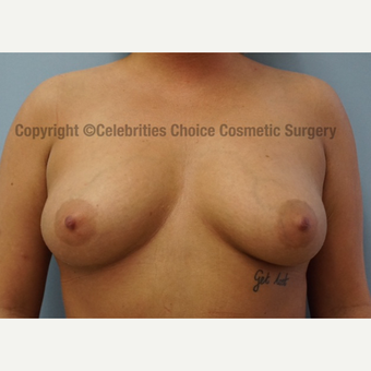 25-34 year old woman treated with Breast Augmentation before 3156509