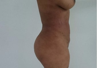 25-34 year old woman treated with Liposculpture after 3411005