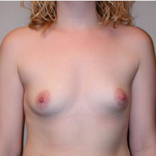 Breast Augmentation before 3680677