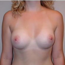 Breast Augmentation after 3680677