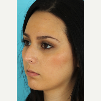 18-24 year old woman treated with Rhinoplasty before 3618491