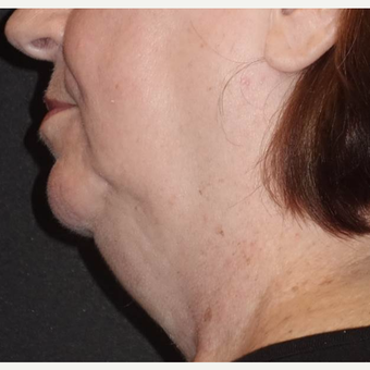 55-64 year old woman treated with Laser Liposuction before 2961471