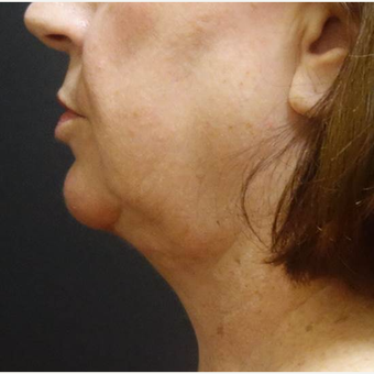 55-64 year old woman treated with Laser Liposuction after 2961471